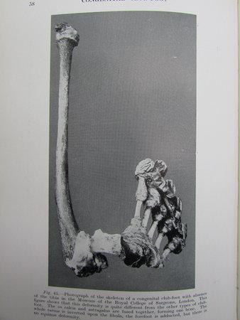 Congenital Club-Foot by BROCKMAN, E. P. M.Chir., F.R.C.S.